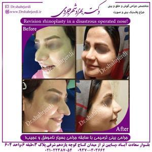 جراحی بینی ترمیمی 1
