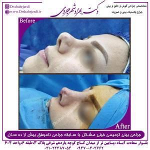 جراحی بینی ترمیمی 10