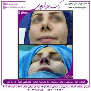 جراحی بینی ترمیمی 11