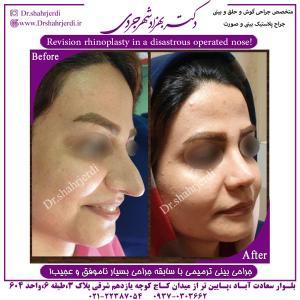 جراحی بینی ترمیمی 3