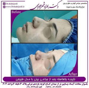 جراحی بینی طبیعی 1