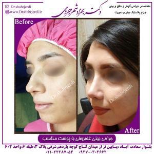 جراحی بینی غضروفی 1