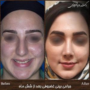 جراحی بینی غضروفی 10