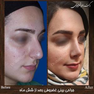 جراحی بینی غضروفی 11