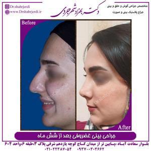 جراحی بینی غضروفی 13