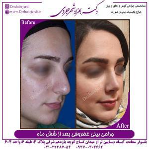 جراحی بینی غضروفی 14