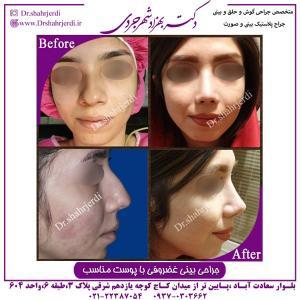 جراحی بینی غضروفی 2