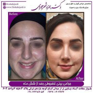 جراحی بینی غضروفی 3