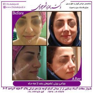 جراحی بینی غضروفی 5