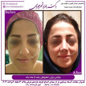 جراحی بینی غضروفی 6