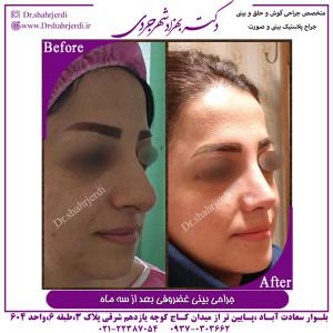 جراحی بینی غضروفی 7