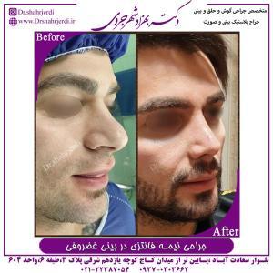 جراحی بینی نیمه فانتزی در بینی غضروفی 1