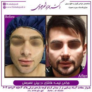 جراحی بینی نیمه فانتزی در بینی غضروفی 3