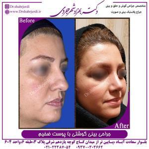 جراحی بینی گوشتی با پوست ضخیم 2