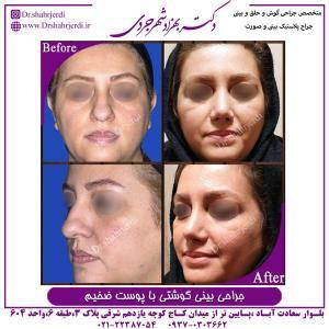 جراحی بینی گوشتی با پوست ضخیم 3