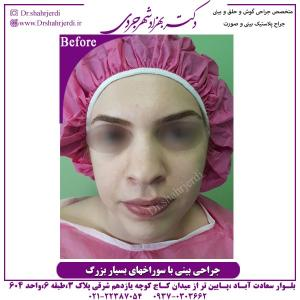 جراحی بینی 305
