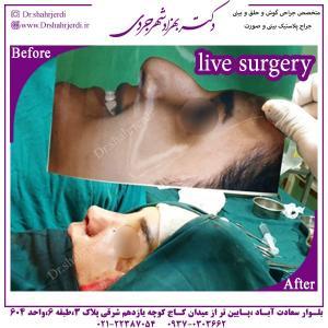 جراحی بینی 307
