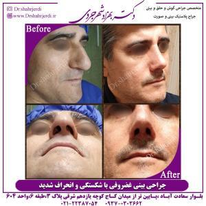 جراحی بینی 308