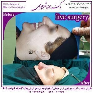 جراحی بینی 312