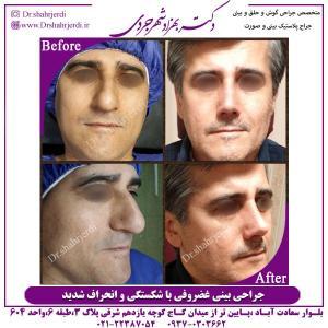 جراحی بینی 317