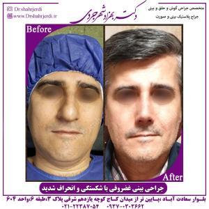 جراحی بینی 319