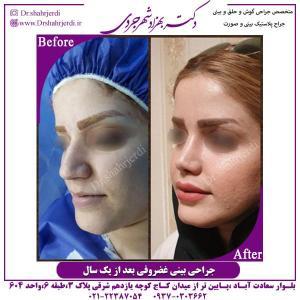 جراحی بینی 321