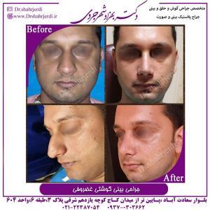 جراحی بینی 332