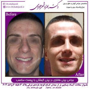 جراحی بینی 339