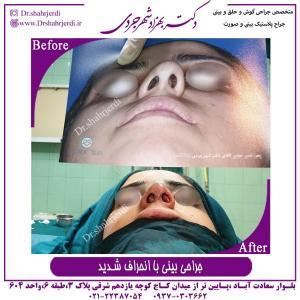 جراحی بینی 352