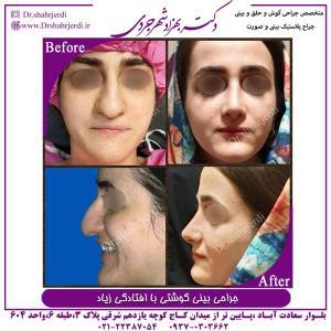 جراحی بینی 353
