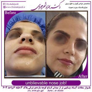 جراحی بینی 367