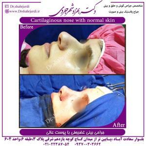جراحی بینی 385