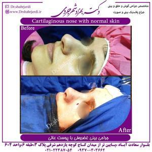 جراحی بینی 386