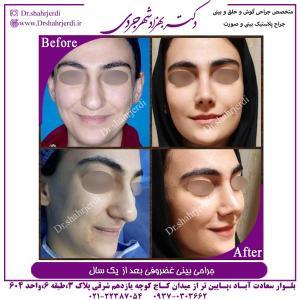 جراحی بینی 389