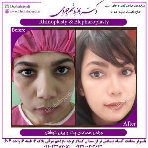 جراحی بینی 390