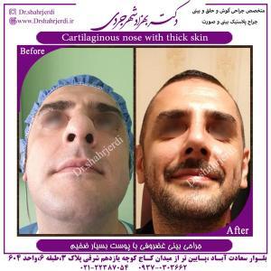 جراحی بینی 393