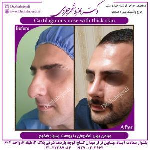 جراحی بینی 394