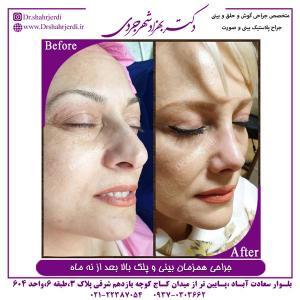 جراحی همزمان بینی و پلک بالا 3