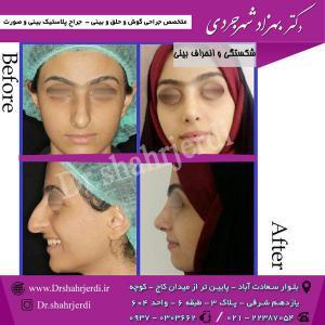 عمل جراحی بینی - دکتر شهرجردی (1)