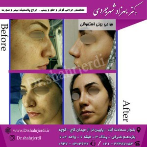 عمل جراحی بینی - دکتر شهرجردی (11)