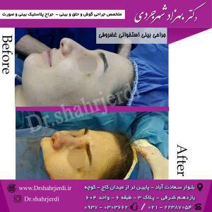 عمل جراحی بینی - دکتر شهرجردی (12)