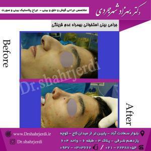 عمل جراحی بینی - دکتر شهرجردی (14)