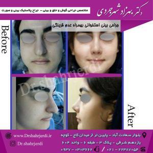 عمل جراحی بینی - دکتر شهرجردی (15)