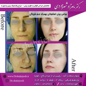 عمل جراحی بینی - دکتر شهرجردی (16)