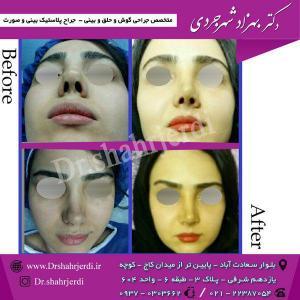 عمل جراحی بینی - دکتر شهرجردی (19)