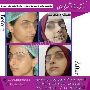 عمل جراحی بینی - دکتر شهرجردی (2)