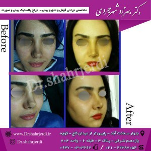 عمل جراحی بینی - دکتر شهرجردی (20)