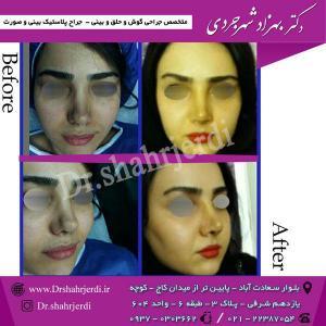 عمل جراحی بینی - دکتر شهرجردی (21)