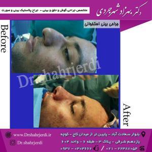 عمل جراحی بینی - دکتر شهرجردی (22)