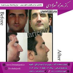 عمل جراحی بینی - دکتر شهرجردی (23)